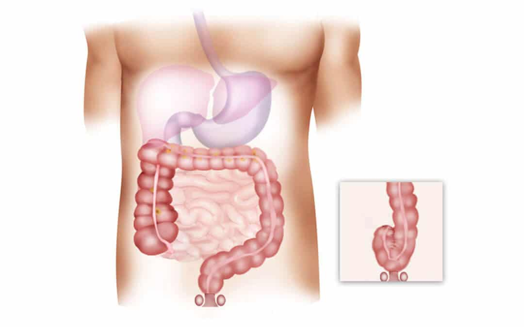cancer de colon sintomas en mujeres